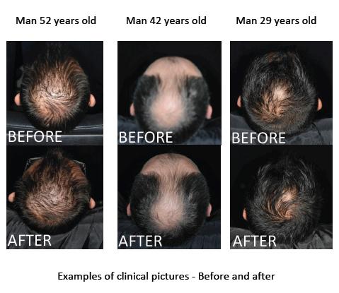 Results growth zinc hair Biotin Hair